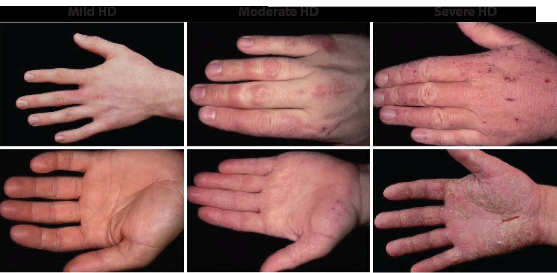 how to fix dermatitis on hands