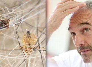 Anti-Lice Insecticide: Permethrin and Pyrethrin-Piperonyl Butoxide