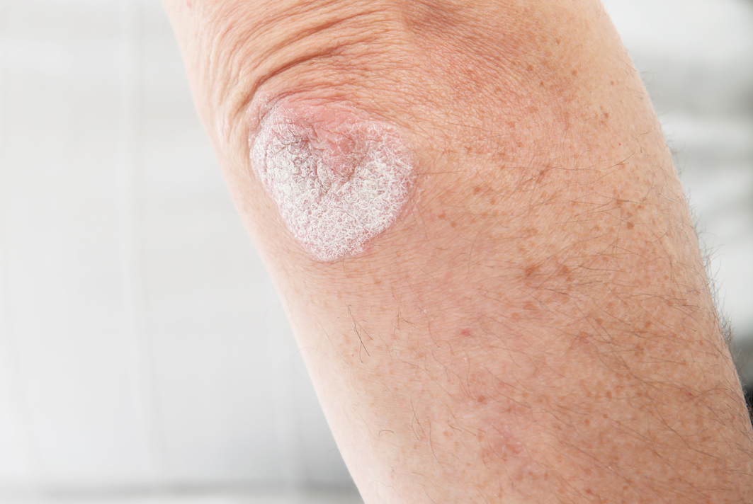 Secukinumab in the Treatment of Psoriasis and Psoriatic