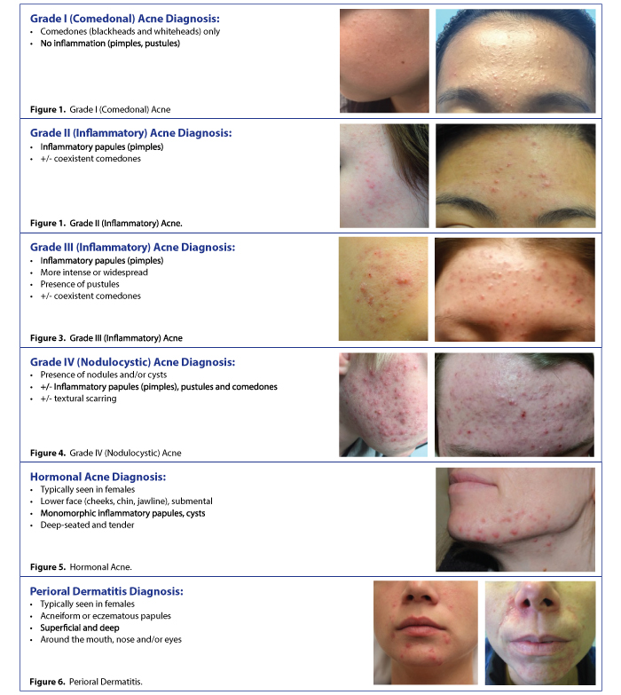 Types of acne and diagnosis