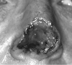 Nasal defect of the right dorsal nose, nasal tip, and ala, with extension in depth to the subcutaneous tissue and perichondrium. Note attenuated alar rim.