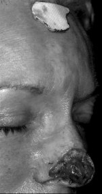 Telfa® template turned 180º and placed on the midforehead with gentian violet marking around its perimeter.