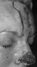 Forehead flap incised and undermined.