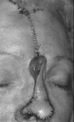 Forehead flap having been rotated 180º is sutured into the nasal defect and the donor forehead defect is sutured. Note between the eyebrows, the open portion of the pedicle, which will be left to heal by second intention.