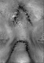Inset and sutured proximal and distal portions of pedicle flap. Note that the inverted V-shaped flap, after the proximal pedicle flap, is inset, which allows for widening of the inter-eyebrow distance.