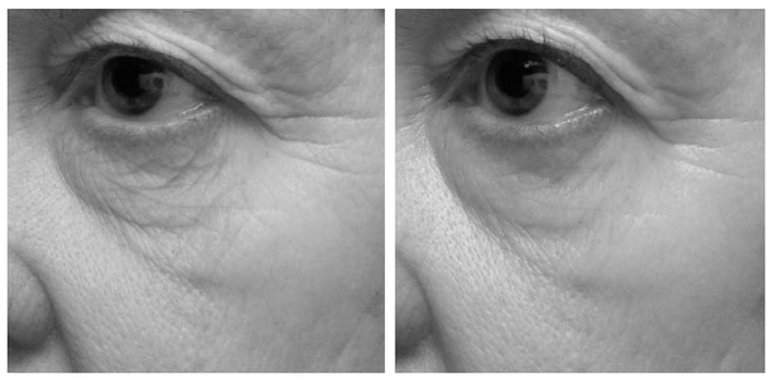 Practical Application of Genomics to the Development of a Topical Cosmetic Anti-aging Regimen - image