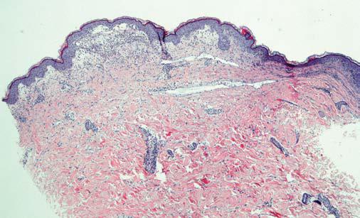 Dermatitis Herpetiformis - image