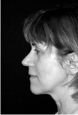 Reduction of Face and Neck Laxity With Anchored, Barbed Polypropylene Sutures (Contour Threads™) - image