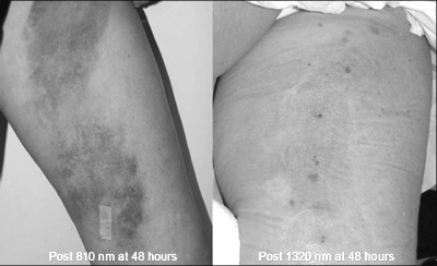 Comparison of Greater Saphenous Vein treatment with 810nm vs. 1320nm 48 hours posttreatment.