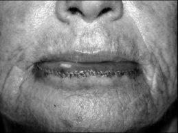 Novel Flaps for Lip Reconstruction - image