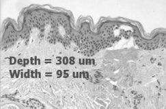 Depth coagulation at 8mJ.