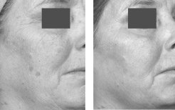 Treatment to improve pigmentation and rhytides using the Fraxel® Laser at baseline and after 4 treatments at 8mJ, 2,500MTZ/cm<sup>2</sup>.