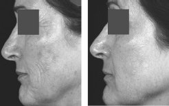 Treatment to improve pigmentation and rhytides using the Fraxel<sup>®</sup> Laser at baseline and after 4 treatments.
