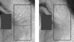 Treatment to improve pigmentation and rhytides using the Fraxel® Laser at baseline and after 4 treatments.