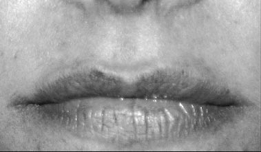 Rejuvenation of the Lip with Injectables - image