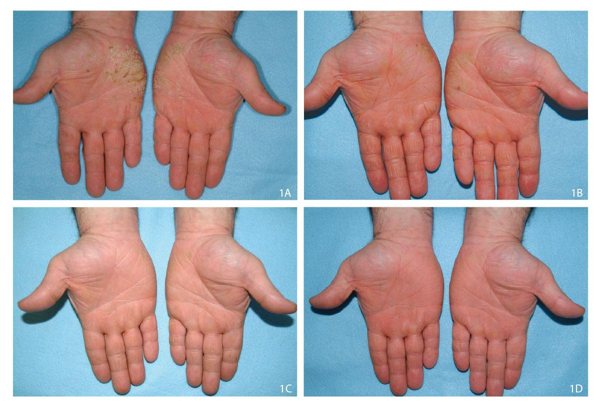 Progress of alitretinoin treatment