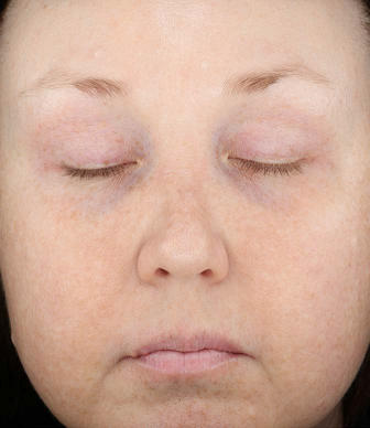 Rosacea: An Update on Medical Therapies (Family Practice) - image