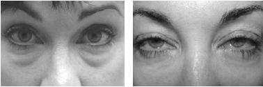 Pre- and post-operative images of patient with lower eyelid pseudoherniated fat pads and 3 months following transconjunctival blepharoplasty and erbium
