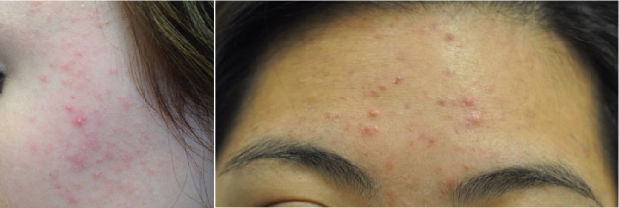A Clinician's Guide to Treating Acne - image
