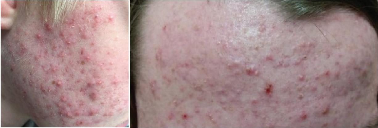 Grade IV (Nodulocystic) Acne