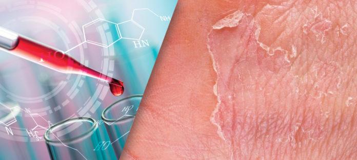 Pimecrolimus 1% Cream for the Treatment of Atopic Dermatitis