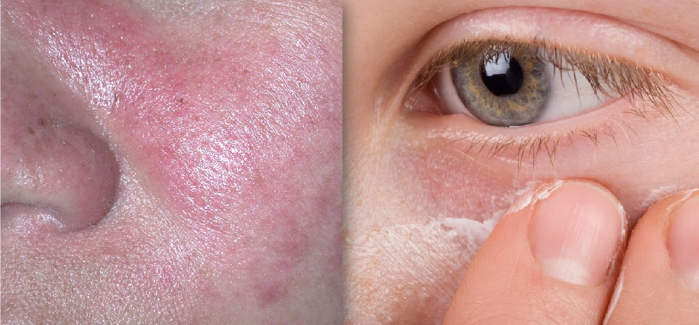 An Update on the Role of Topical Metronidazole in Rosacea