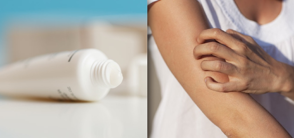 Management And Treatment Of Pruritus