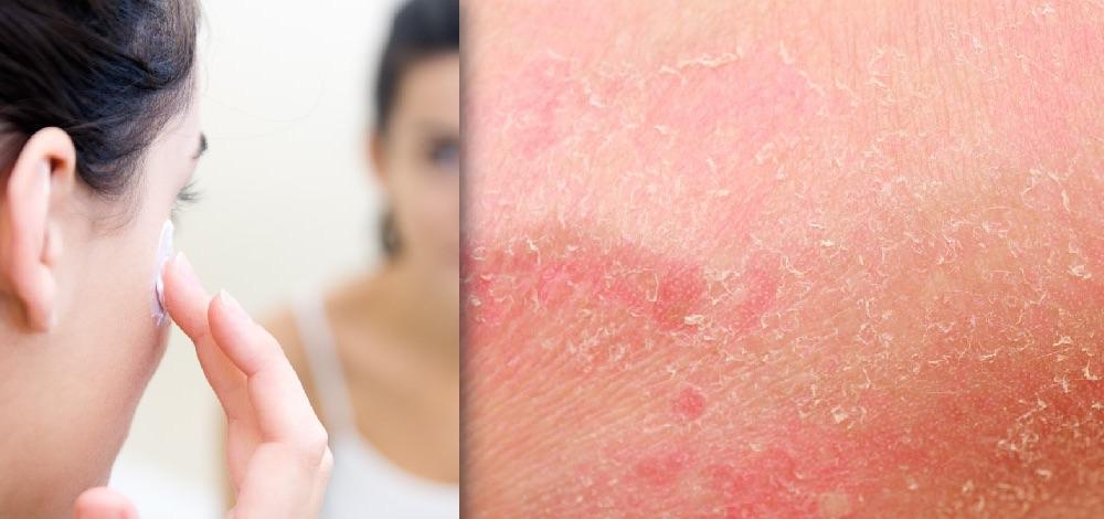 Topical Corticosteroids Eczema