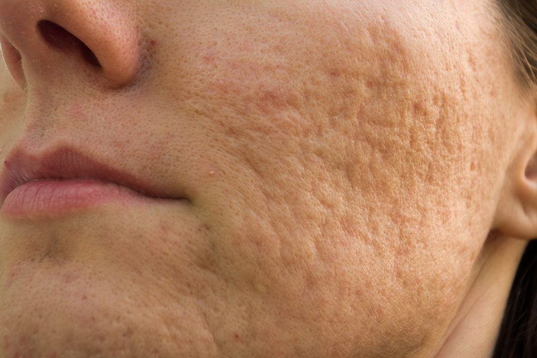Non Surgical Treatment Of Acne Scars