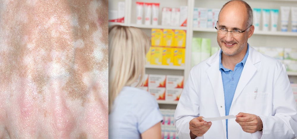 Use Of Tacrolimus Ointment In Vitiligo Alone Or In Combination Therapy