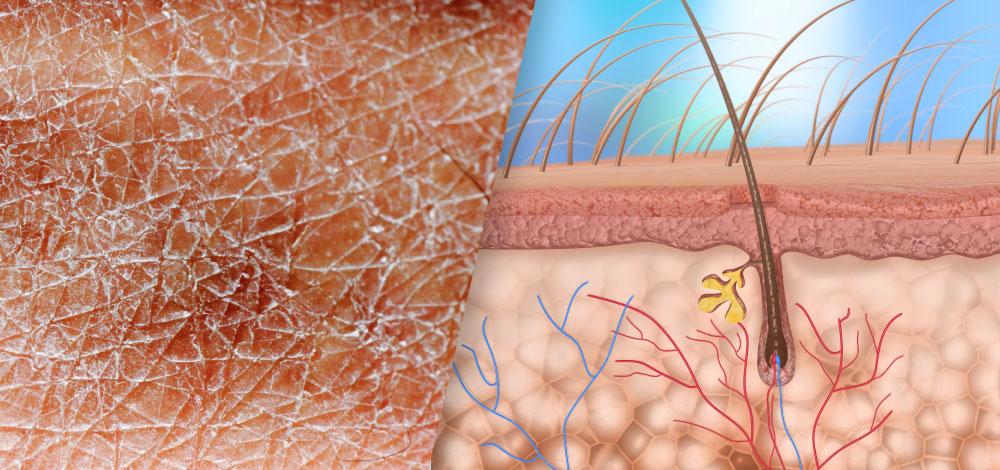 epidermal skin and skin diagram