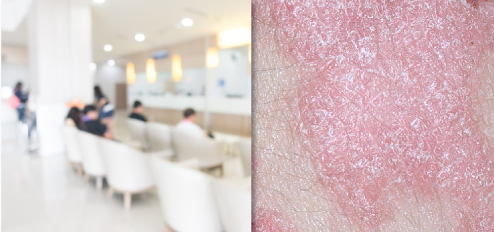 Picture of skin affected by psoriasis and people waiting for treatment in a clinic