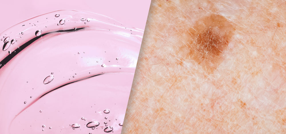 image of skin and cosmetic gel mass
