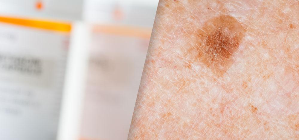 methotrexate tube and skin