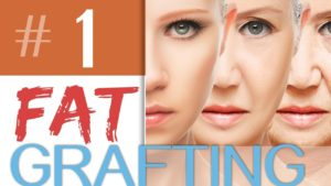Fat Grafting: What is it?