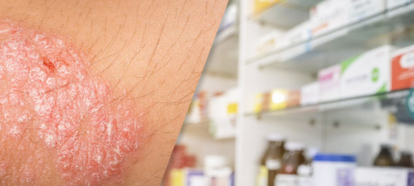 image of woman applying cream on her arm with psoriasis