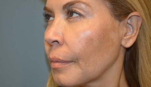Melasma and Post Inflammatory Hyperpigmentation: Management Update and Expert Opinion - image