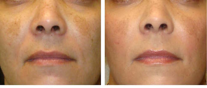 topical triple therapy and 2 treatments of full-face 20% salicylic acid peels.
