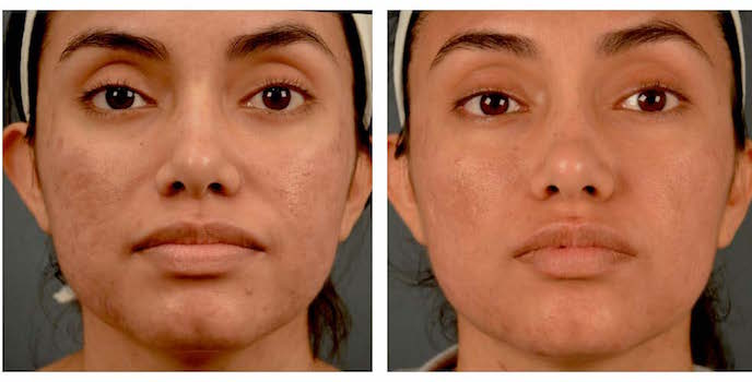 Melasma and Post Inflammatory Hyperpigmentation Treatment Update