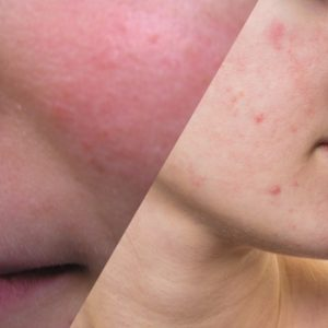 The Role of Skin Care in Optimizing Treatment of Acne and Rosacea