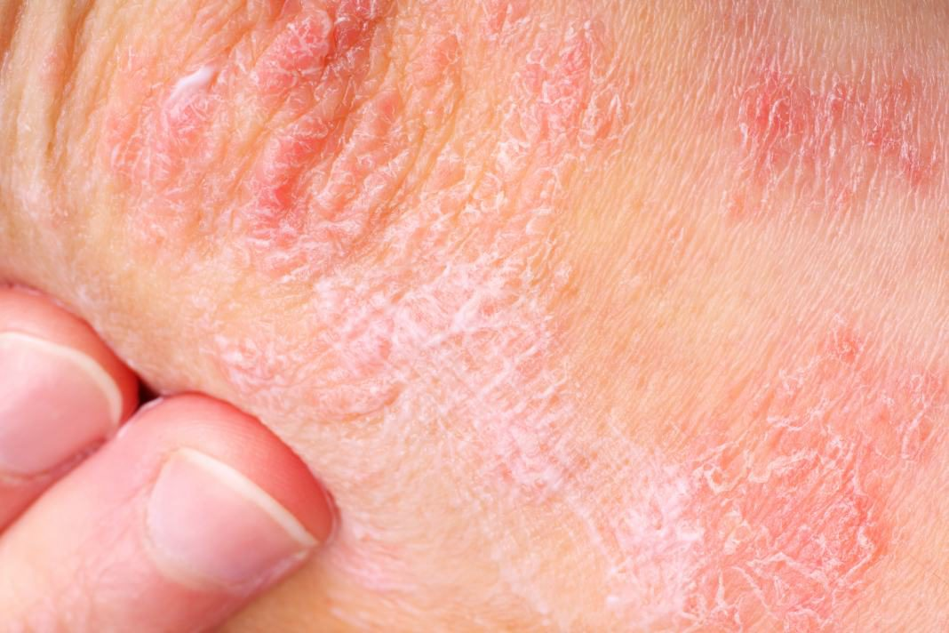 Treatment Suggestions For Different Types Of Psoriasis
