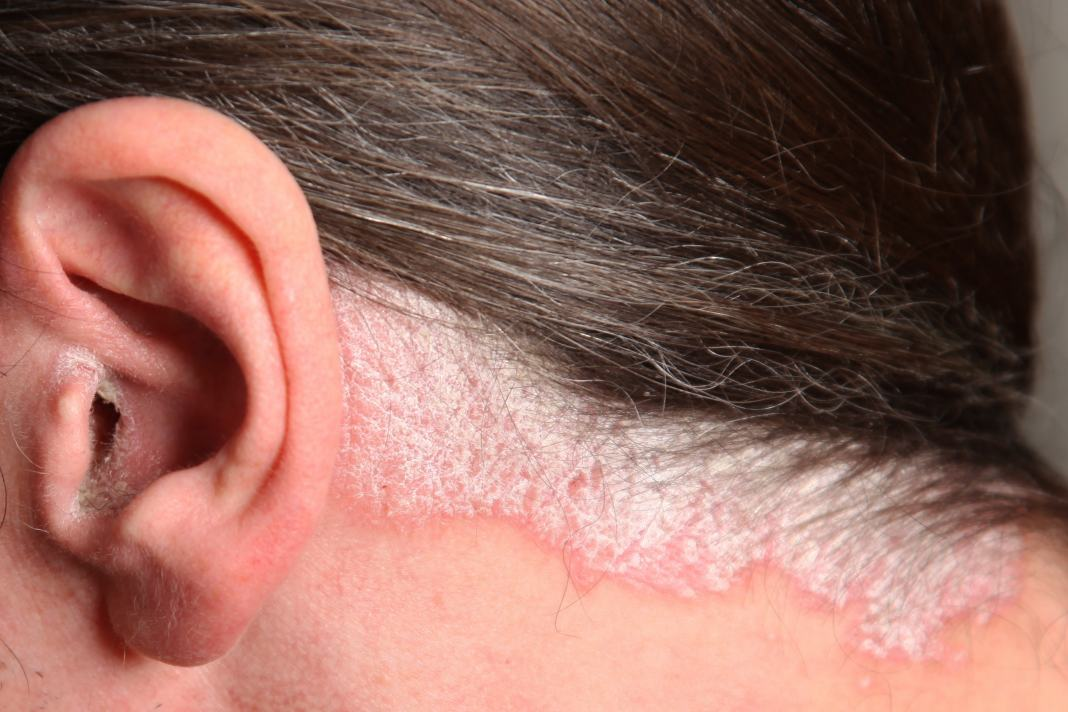 Кожи ушах шелушение на лечить стреляют уши чем