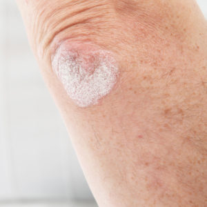 Secukinumab in the Treatment of Psoriasis and Psoriatic Arthritis image