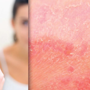 Dupilumab for Moderate-to-Severe Atopic Dermatitis