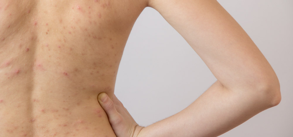 Understanding Truncal Acne: A Practical Guide to Diagnosis and Management