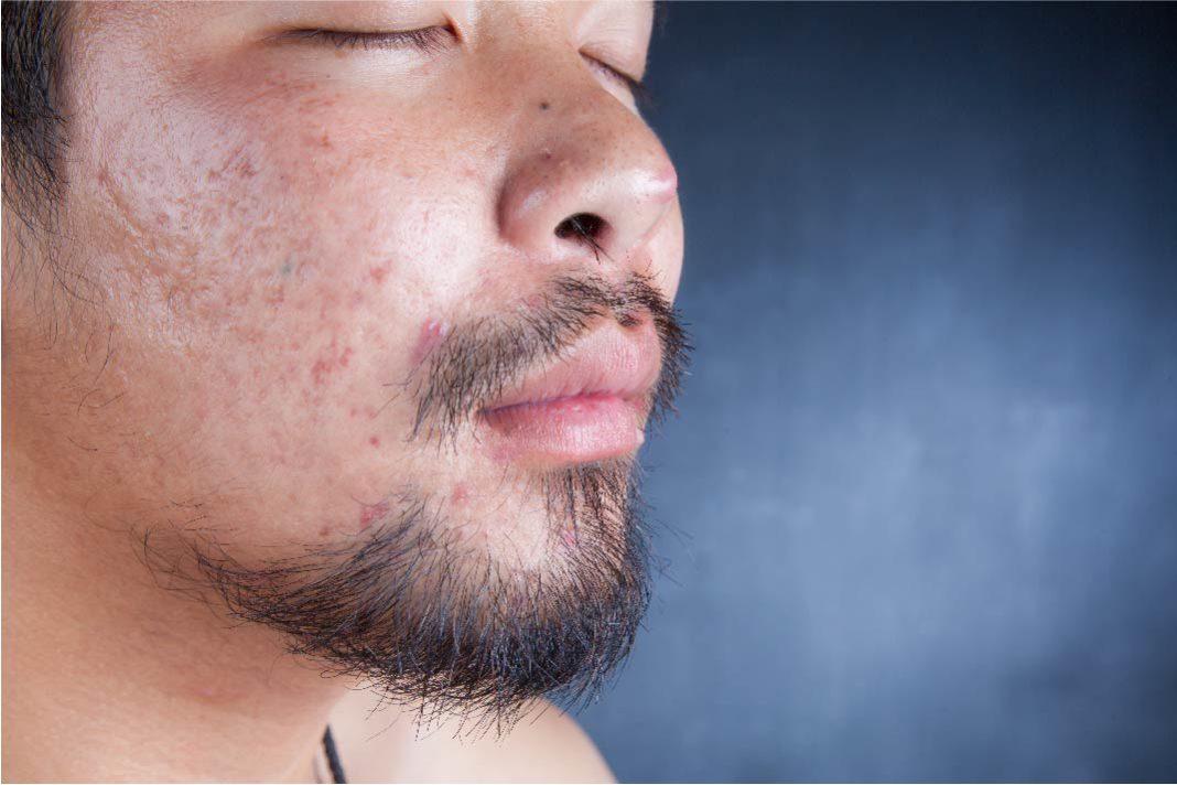 Tetracycline As Acne Treatment Option