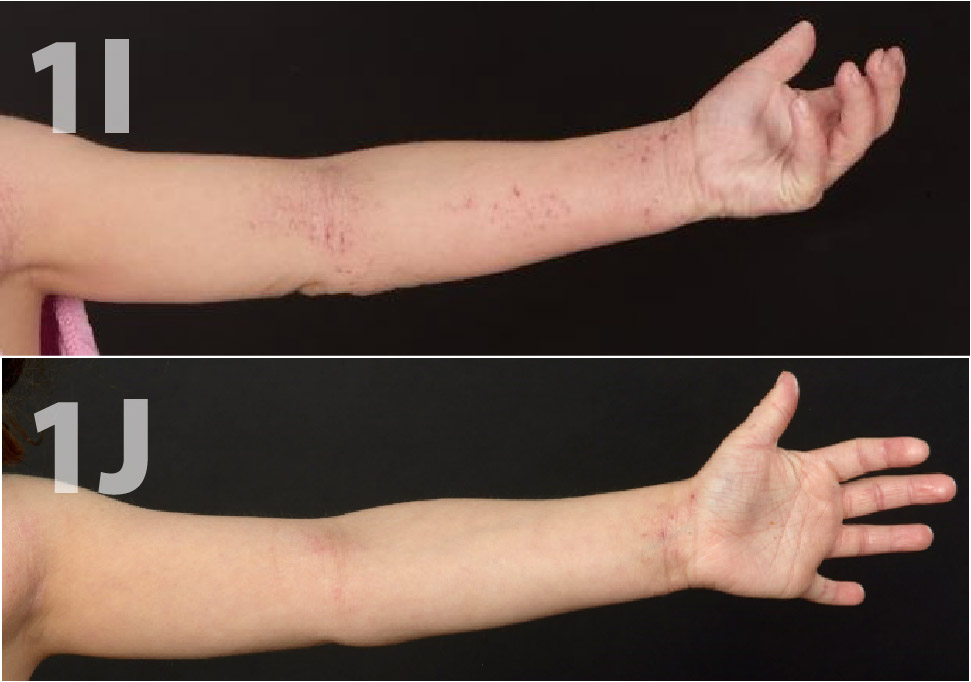 Use of Topical Crisaborole for Treating Dermatitis in a Variety of Dermatology Settings - image