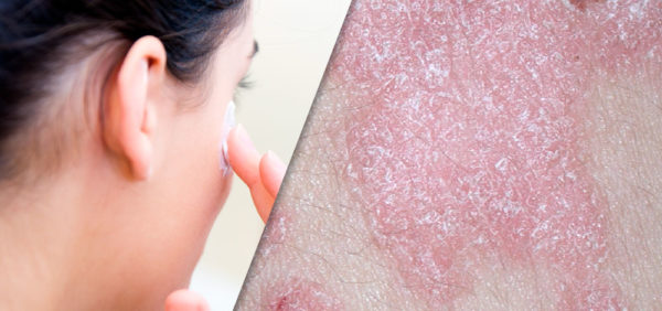 The Evolution of Topical Formulations in Psoriasis