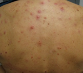 Hormonal Treatment of Acne in Canada: Clinical Update and Case-Based Treatment Approaches - image