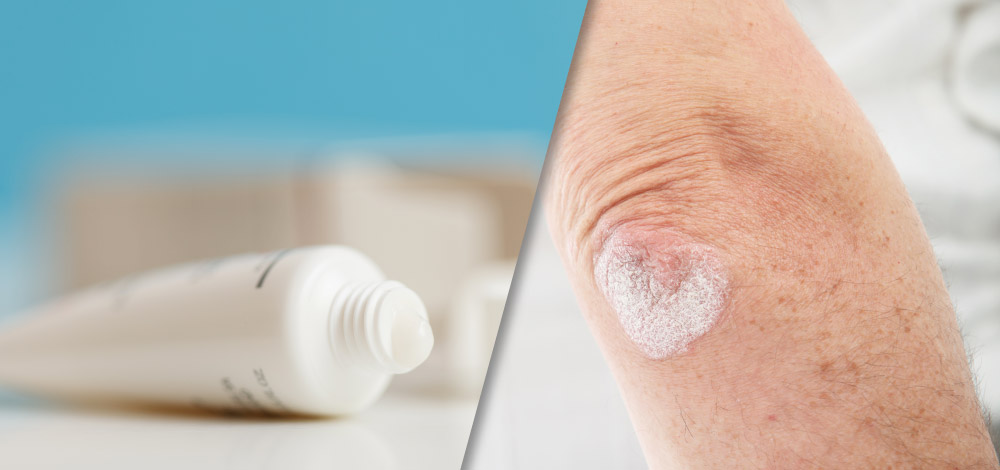 Topical Formulations in Psoriasis